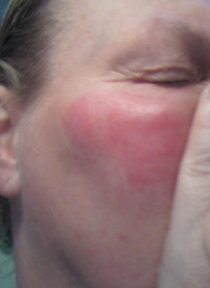 Causes for facial flushing and edema