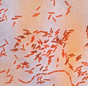 It takes over 100,000 of these (Salmonella) to cause disease in an average human.  A closely-related organism, Shigella, only needs about 100.